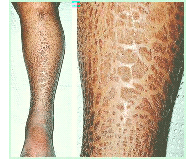 how-to-treat-ichthyosis-effectively-lotion-for_1.png